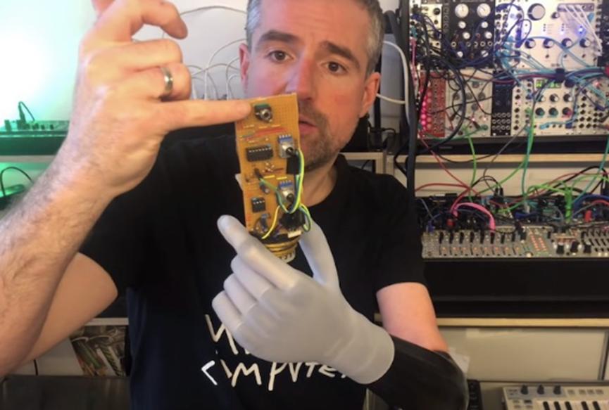 Bertolt使用假肢控制他的模块化合成器以产生电子音乐