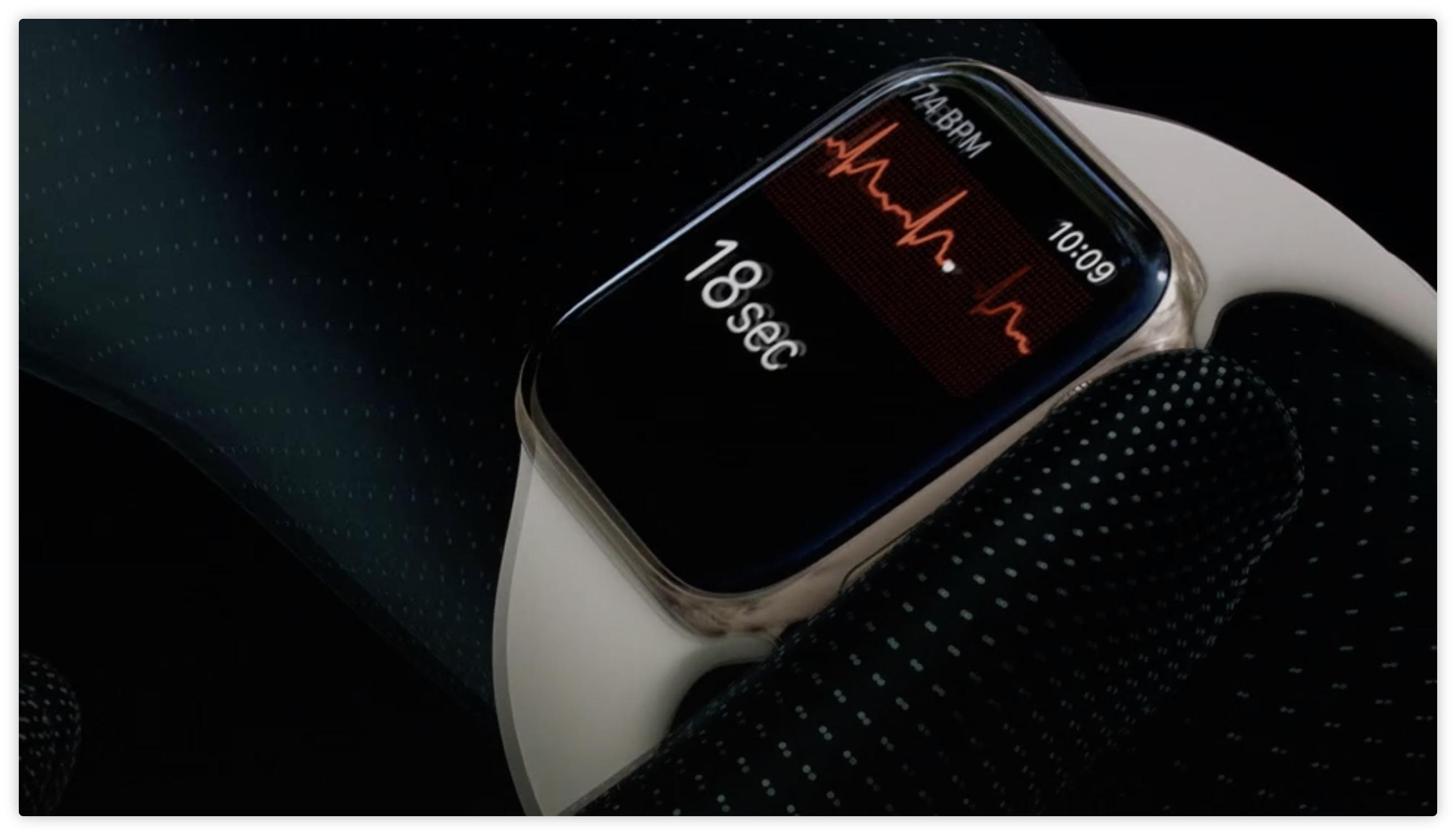 Apple Watch ECG检测到医院ECG遗漏的心脏病证据
